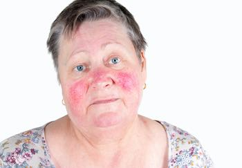 woman with skin condition rosacea